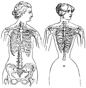 corsetdeformities